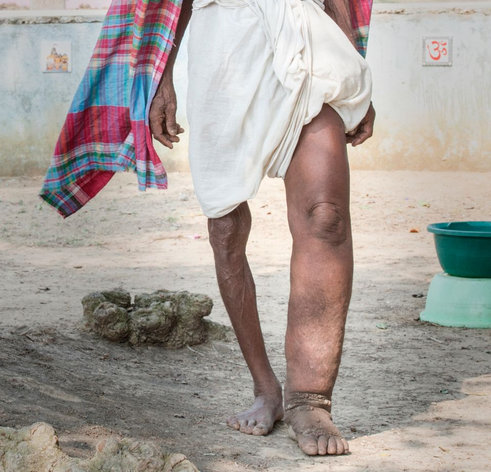 """Lymphatic filariasis, more commonly known as elephantiasis, is a <a href=""""https://www.cdc.gov/parasites/lymphaticfilariasis/"""""""