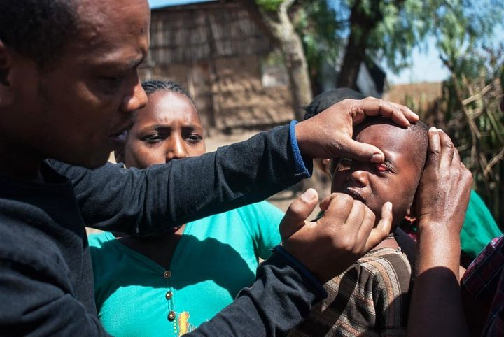 Muluadam Abraham, an ophthalmic nurse, examines a small child for signs of trachoma, finding white spots on the inside of the